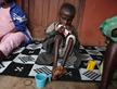 Child Hunger in Africa - Copyright Sipa Press / REX