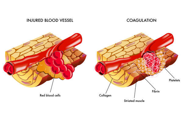 injured-blood-vessel-coagulation-healthtap.com